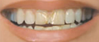 veneers_before_1.jpg