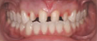 veneers_before_2.jpg